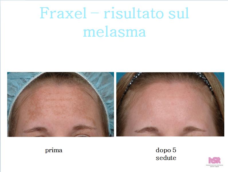 Laser epilation di pigmentazione della persona