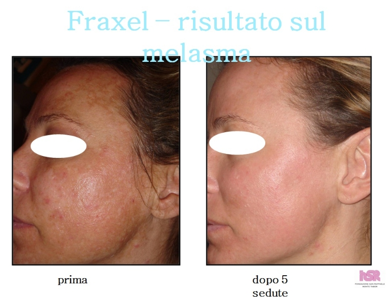 Decolorazione di gidroperit di pelle di faccia