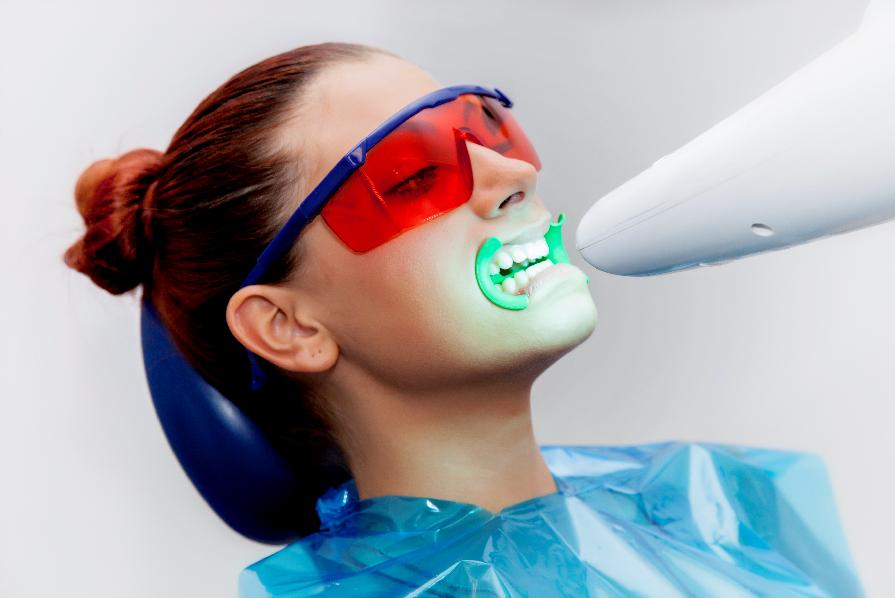 Lo sbiancamento dei denti con la lampada led